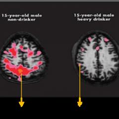 Daños del alcohol al cerebro: ¿Cuáles son?
