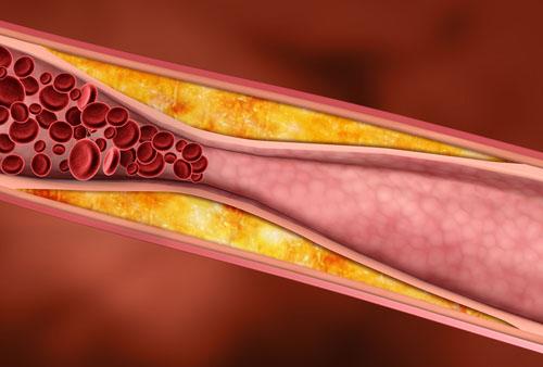 Medicamentos para tratar la hipercolesterolemia