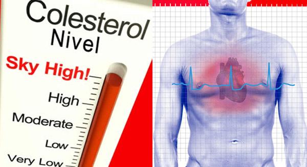 Niveles normales de colesterol