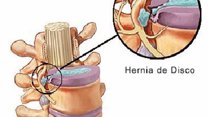 Hernia discal: ejercicios recomendados