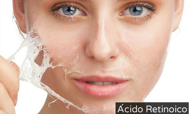 El ácido retinoico