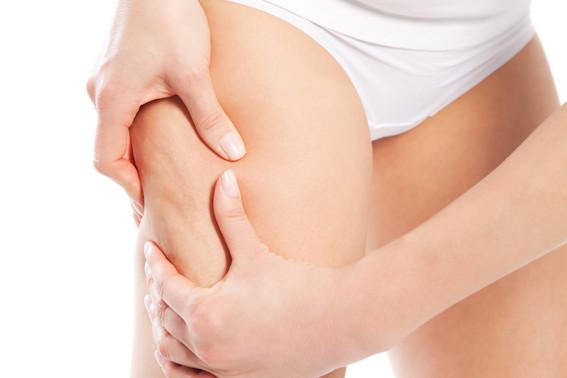 Celulitis, tratamientos naturales