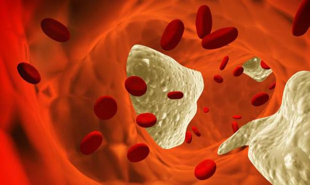El colesterol bajo también puede ser perjudicial
