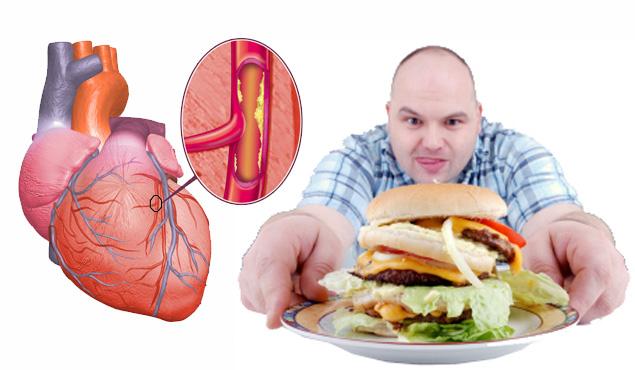 Cómo bajar el colesterol malo