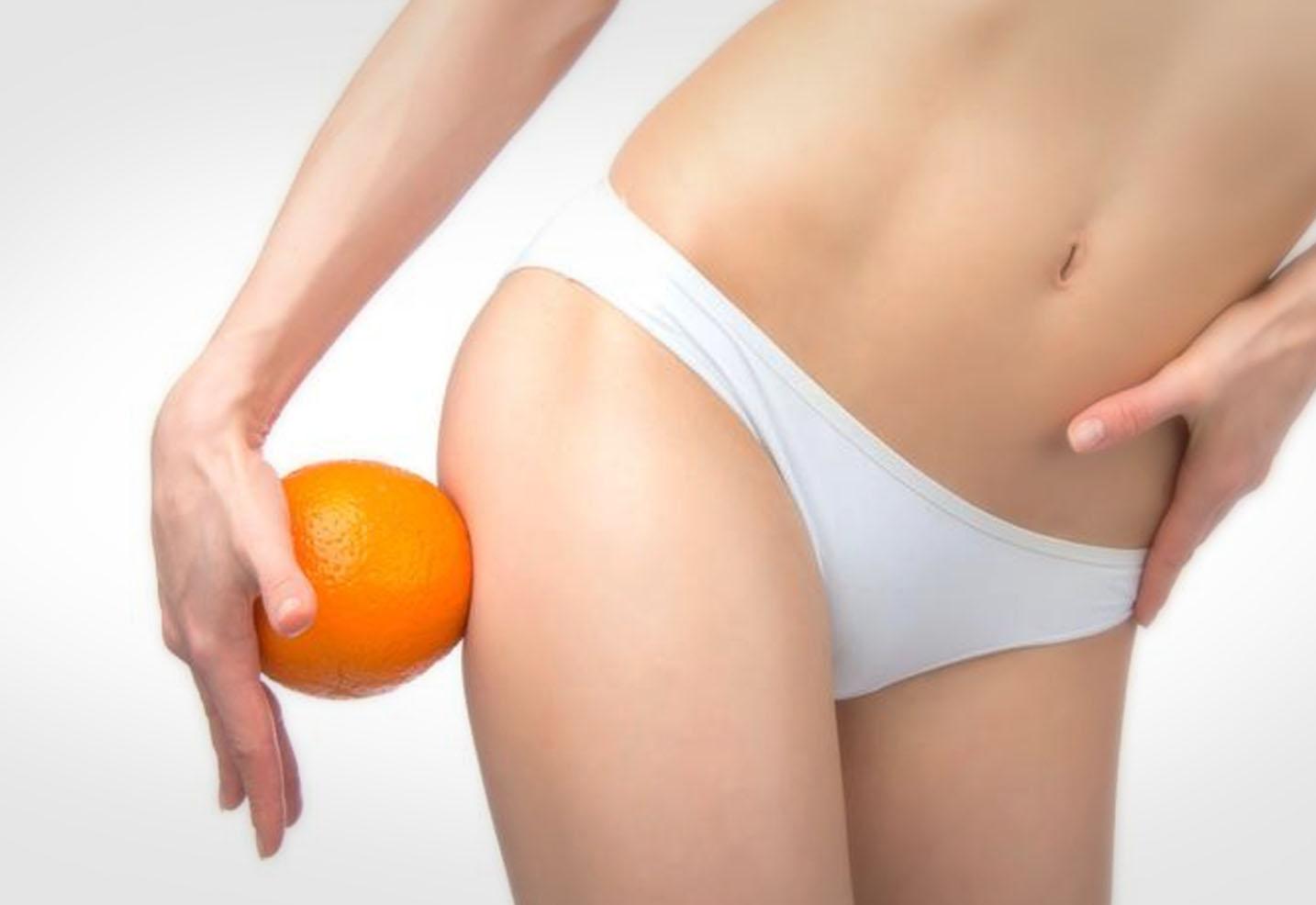 Tratamiento celulitis, como eliminarla