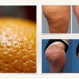 5 alimentos que eliminan la celulitis