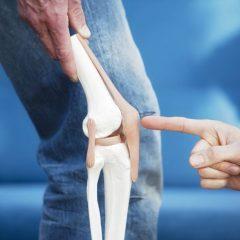 4 Consejos prácticos para fortalecer rodillas